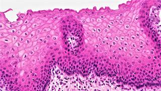 كيف تتغذى الأنسجة الطلائية في جسمنا